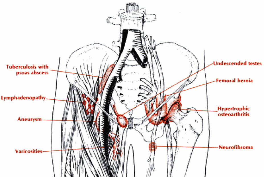 Locations of groin masses