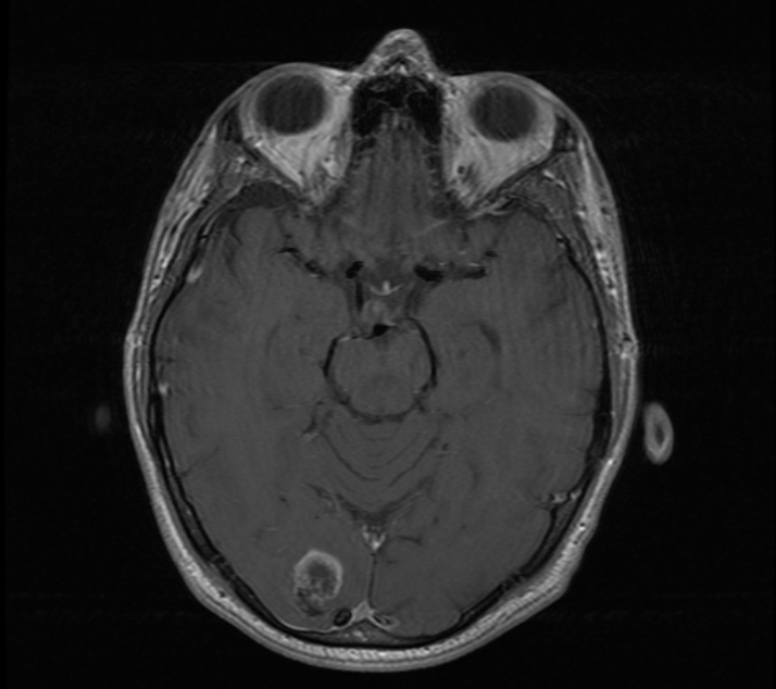 Seizure - 2.2cm rim-enhancing lesion in the right occipital lobe.