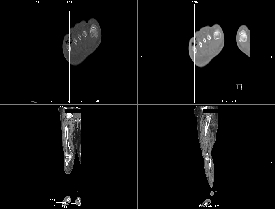 CT Lower Extremity