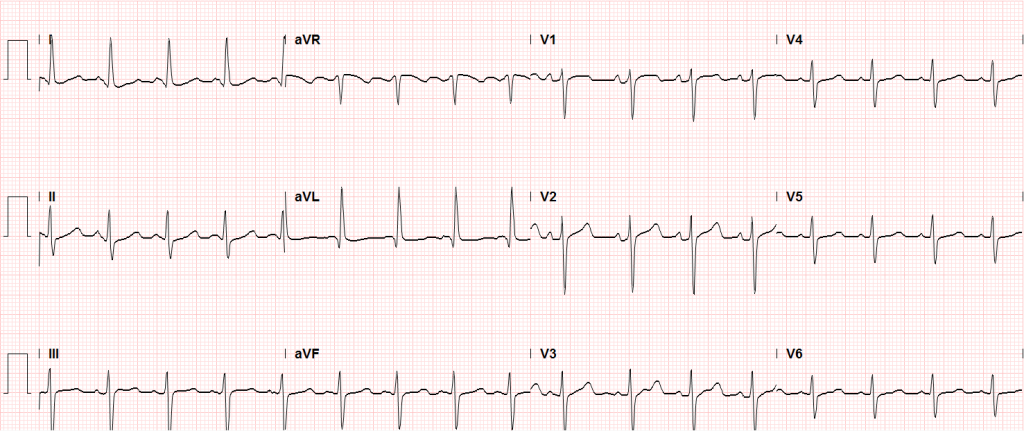 Sinus tachycardia, LVH, secondary repolarization abnormalities