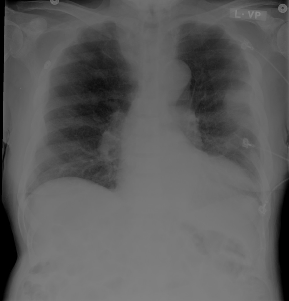 Chest x-ray with pleural-based mass