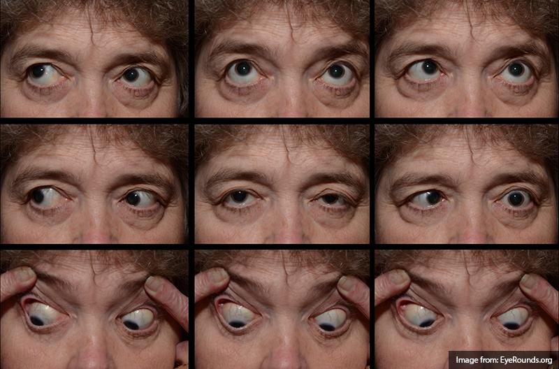 facial paresis
