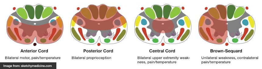 Spinal Cord Syndromes