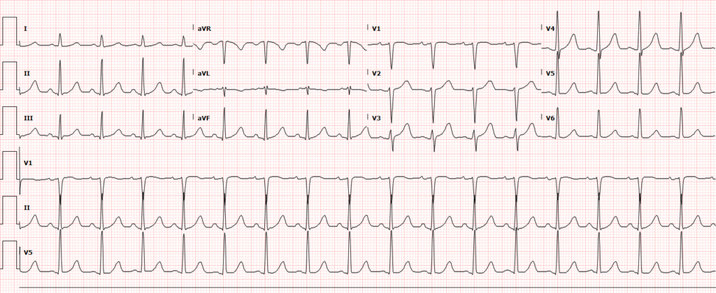 Palpitations - Sinus Tachycardia