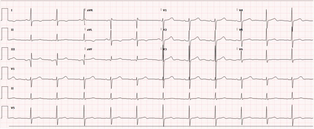 Post-Catheterization ECG