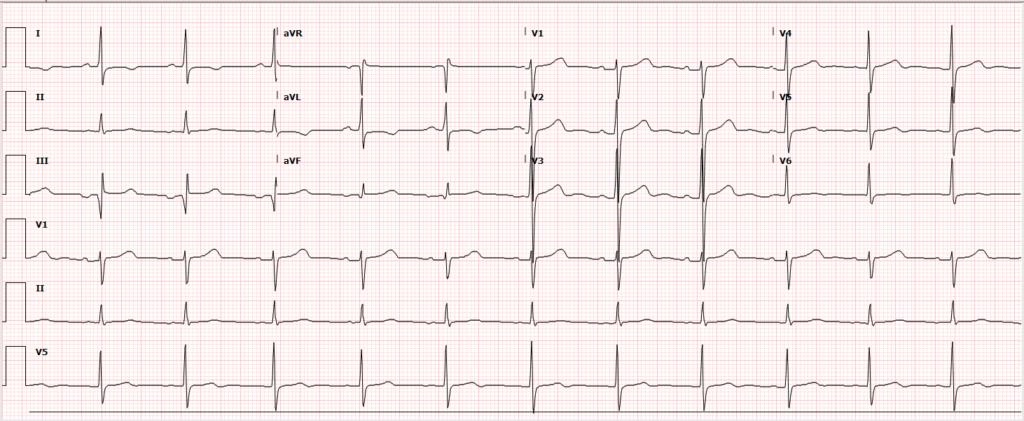 Post-Catheterization ECG