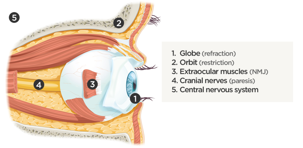 Sites causing diplopia