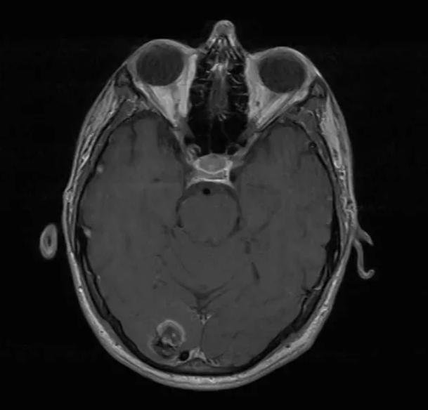 MRI Brain: Axial