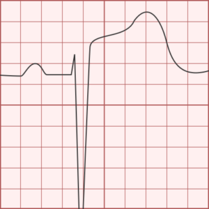 Electrocardiography, Electrocardiography; Types, Indications/Uses, Procedures, Rx Harun