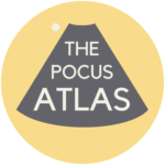 The POCUS Atlas