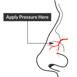 Epistaxis site of compression