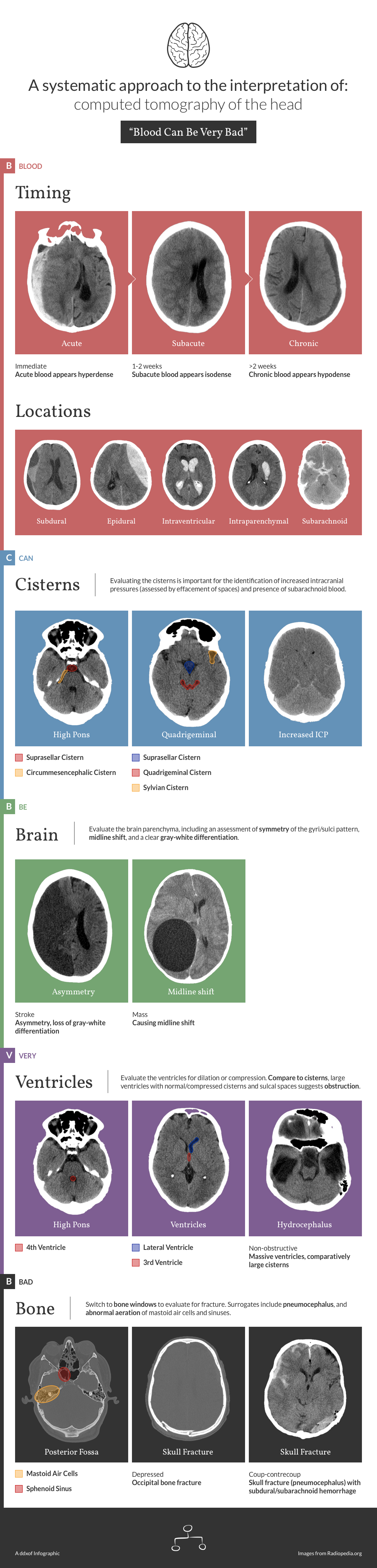Infographic: CT Head Interpretation