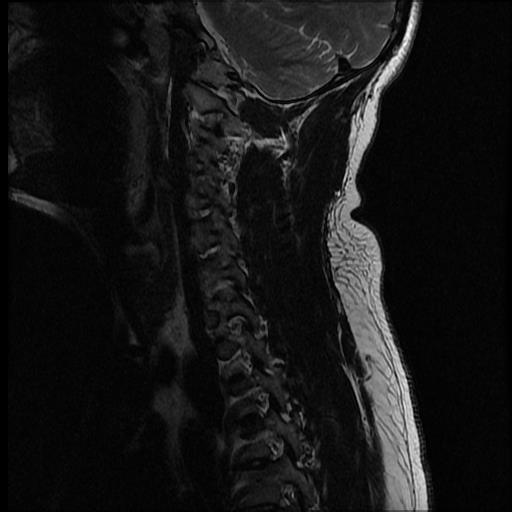 chiari-1-malformation-with-secondary-cervicothoracic-syringomyelia (1)