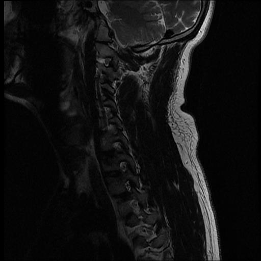 chiari-1-malformation-with-secondary-cervicothoracic-syringomyelia (8)