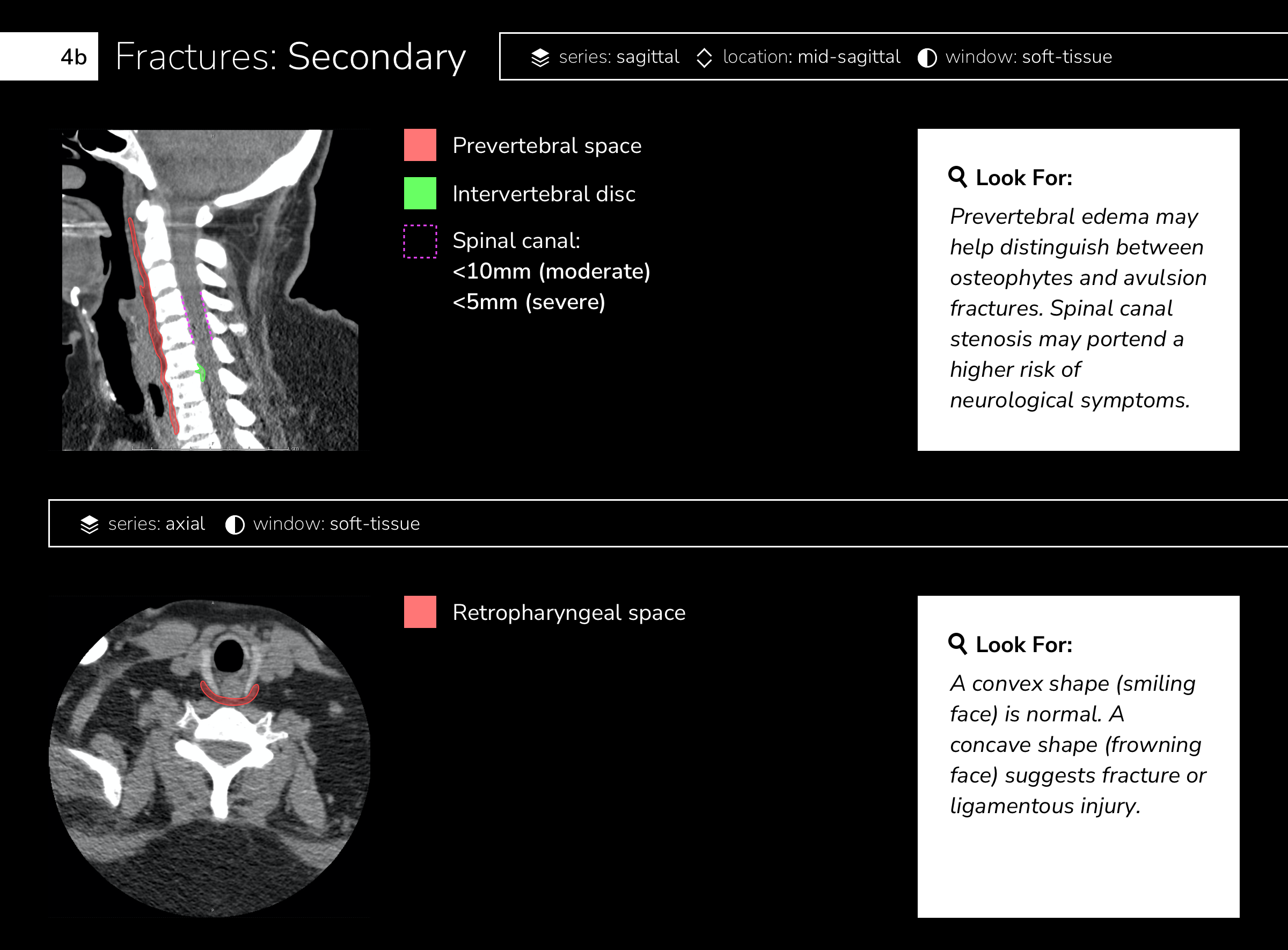 Fractures: Secondary