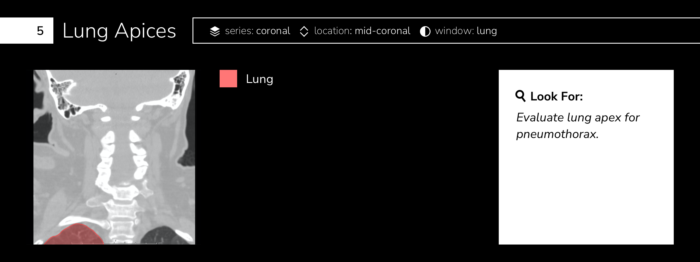 Lung Apices